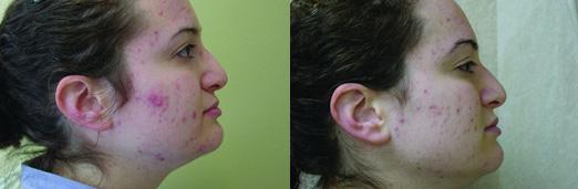 Лечение на акне по elos технология как избавиться от прыщей лечение угрей угревая сыпь акне